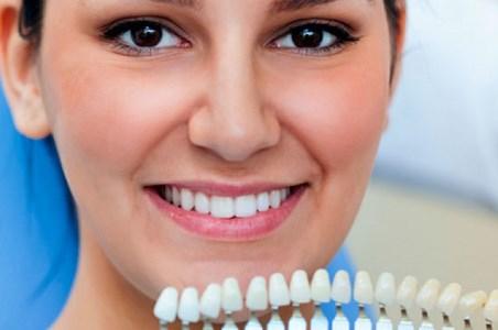 Шкала оттенков для отбеливания зубов