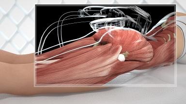 Аппарат для похудения фигуры EMShape