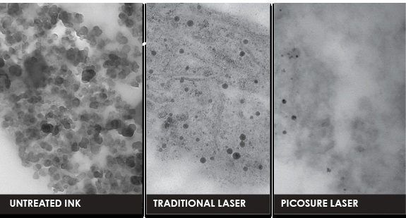 Неодимовый пикосекундный лазер