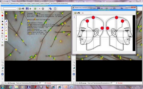 Подсчет перифолликулярных знаков в программе TrichoSciencePro