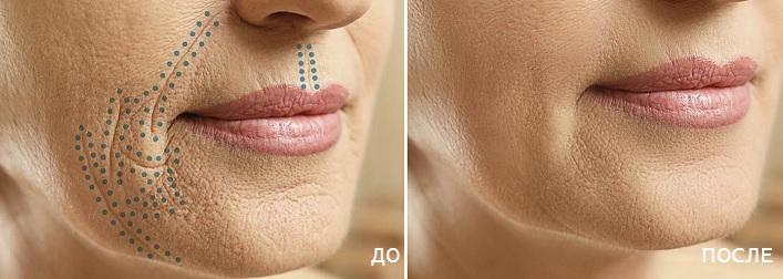 результаты применения Plasmatic Skin Health фото