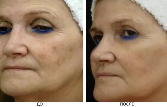 Выведение перманентного макияжа