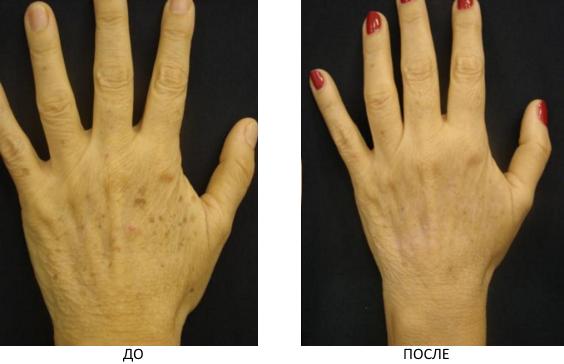 Выведение пигмента на руках