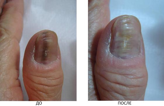 Выведение пигмента на ногтях