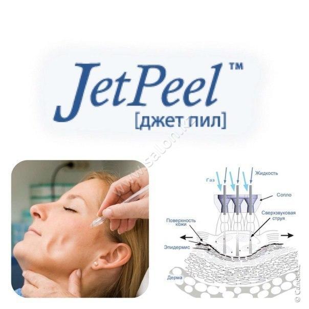 O2 Jet Peel Plus