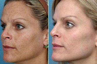 Осветление кожи лица