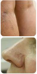 Удаление капилляров и сосудистой сетки