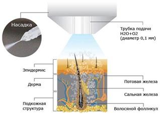 Аппарат для газожидкостного пилинга и газожидкостной обработки кожи