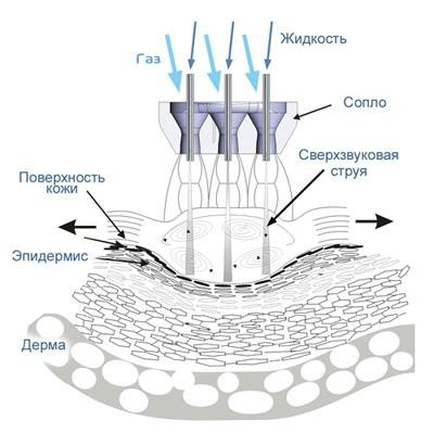 Принцип работы аппарата для газожидкостного пилинга и газожидкостной обработки кожи SpaZO