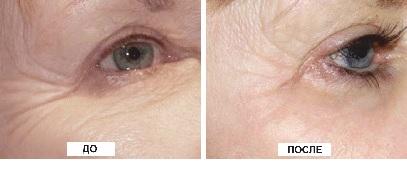 Результаты применения увлажнение кожи лица гелем Лазмик