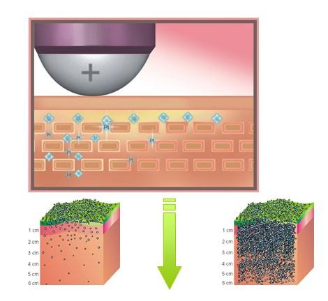 Сравнение традиционной ионофоретической технологии с технологией наноэлектрофоропорации