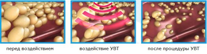 Воздействие УВТ на целлюлит и жировые отложения